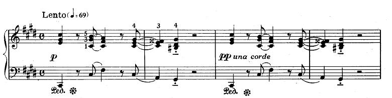 ショパン「ノクターン第20番(嬰ハ短調(遺作))」ピアノ楽譜