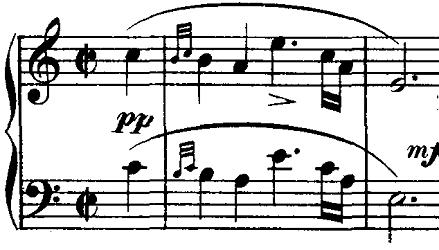 シューベルト「ピアノソナタ第16番イ短調D845,Op.42第1楽章」ピアノ楽譜1